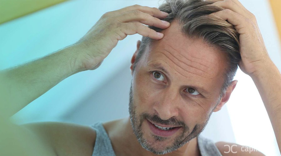 Main advantages of hair transplant