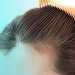 Female Alopecia: Everything You Need to Know
