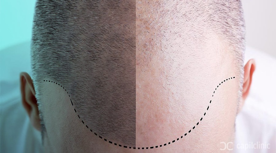 When do you start seeing the results of the hair transplant?