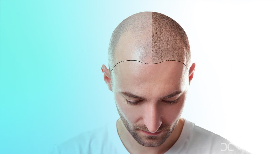 How is the postoperative process after a hair transplant