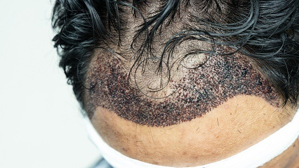 Infected Hair Transplant, What Is It?